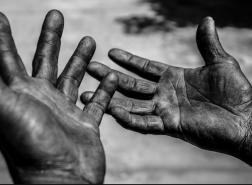 تركيا: وفاة 737 عاملًا في الأشهر الخمسة الأولى من العام الحالي