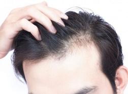 لماذا تركيا أفضل مكان لزراعة الشعر؟
